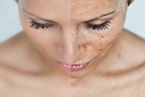 Отбеливающий крем для интимной зоны isme whitening leg therapy cream отзывы