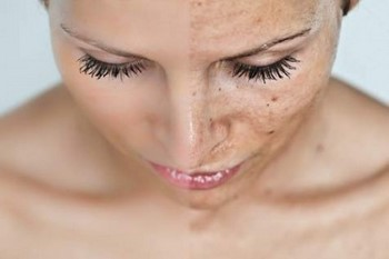 Пигментные пятна на лице: результат удаления