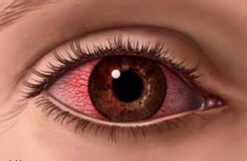 Картинки по запросу Если глаза устали: 10 способов быстро снять усталость с глаз...
