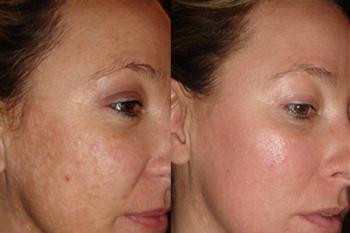 Лазерный пилинг лица: результаты