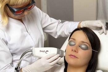 Лазерный пилинг лица: суть процедуры