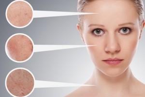 Болезни кожи лица: общий обзор