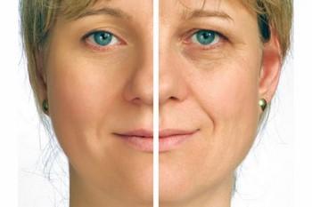 Антивозрастной крем для лица: результат
