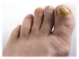 Грибок ногтя фото народные лечение